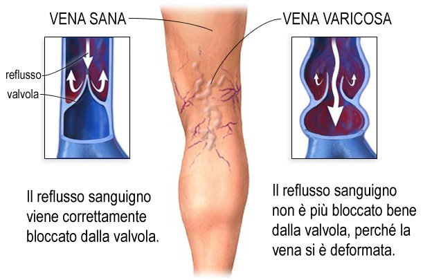 vene varicose fattori incidenti